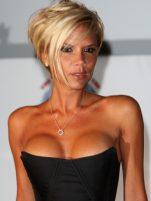 Ποια πλαστική επέμβαση μετανιώνει η Victoria Beckham;