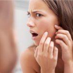 Έχεις δέρμα με ακμή; Μάθε τι φταίει, τι μπορείς να κάνεις μόνη σου και τι στο γιατρό σου